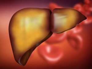Liver Fat Accumulation