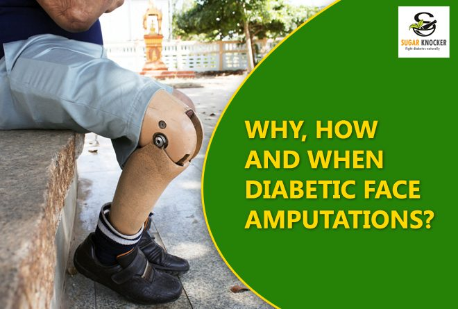 Diabetics Face Amputations