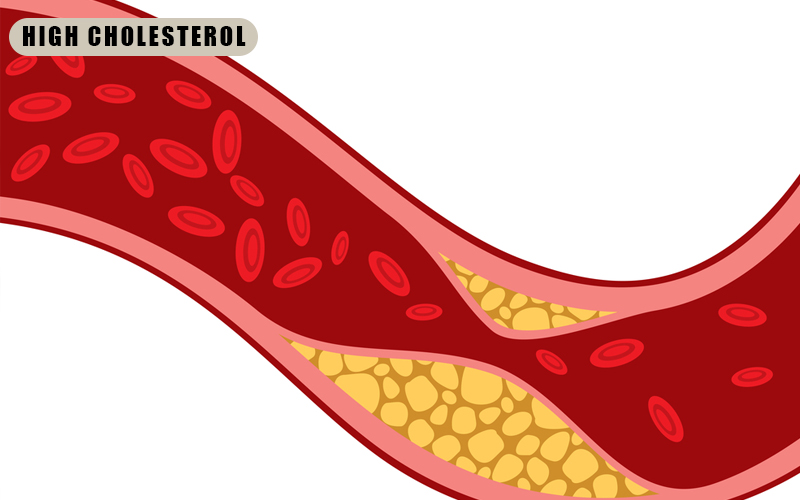 Berberine Benefits Diabetes - Reduces High Cholesterol